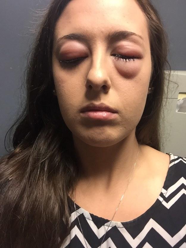 Dieses Mädchen, das vom Staub golfballgroße Augenlider bekam: