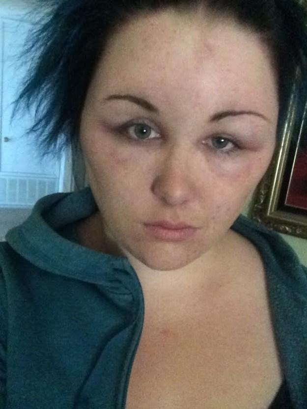 Diese Frau, die vom Haarfärbemittel einen Ballonkopf bekam: