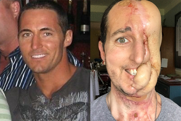 Image result for Man Who Lost Half Of His Face To Cancer Had It Rebuilt From His Legs