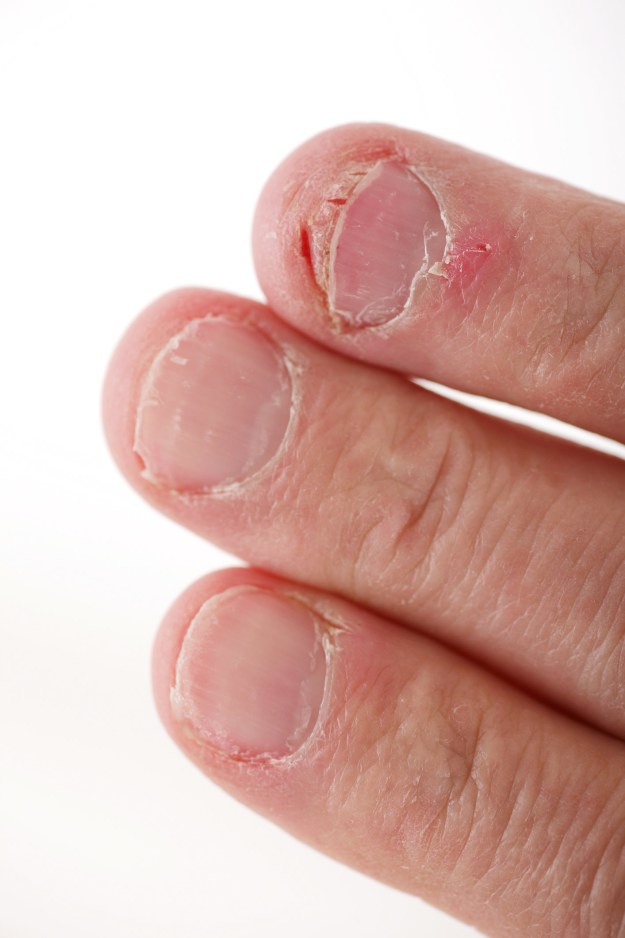 Maybe you bite your nails really badly.