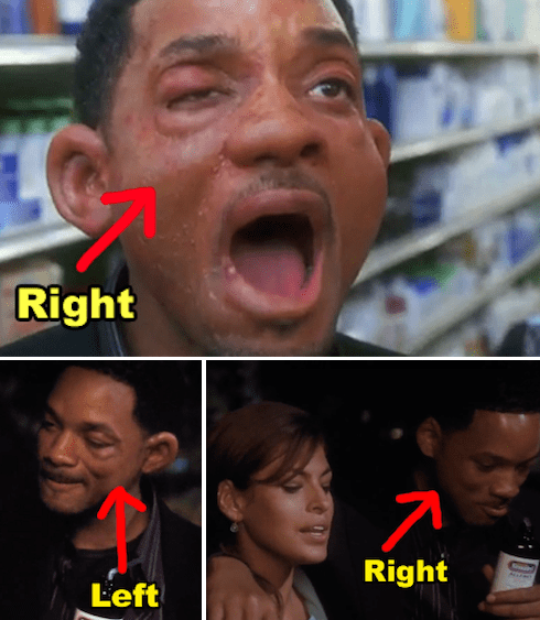 In Hitch, Will Smith's character has an allergic reaction, and only one side of his face swells up. Later on in the night, the swelling switches to the opposite side.
