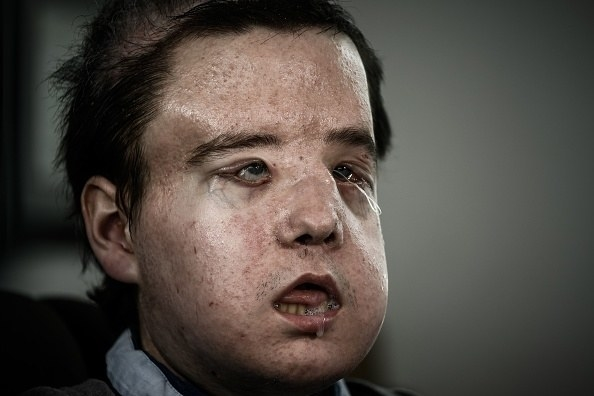 """Hamon's transplant is described as """"exciting"""" and """"very encouraging"""" for the future of face transplants."""