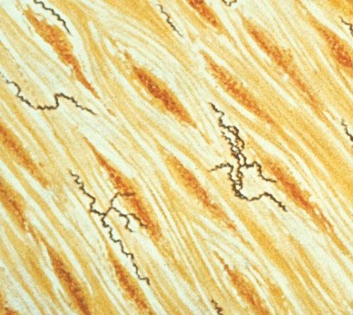 Treponema pallidum bacteria, which cause syphilis