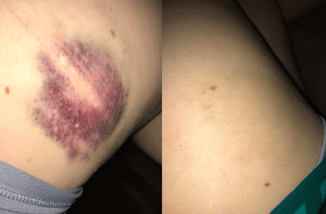 """""""I have never written a review for anything, and with that I say this deserves more than five stars. I bruise very easily and up until I found Arnicare I let bruises heal the old-fashioned way, usually for weeks. I just got a nice black-and-blue, and using this gel twice a day it was gone in 10 days! Given the severity of the discoloration I will count that as a win!"""" —Amazon Customer""""I fractured my foot in October and was able to walk again five weeks later...but the swelling would not go down, especially at night. I tried essential oils and raising my foot up and it didn't seem to be helping. I was recommended this cream and thought I'd give it a chance. The results were almost immediate! The next day the swelling was down by half and a week later there's virtually no swelling that I can detect. I can almost walk normally now."""" —Hillbilly""""I love this stuff. It was recommended to me seven years ago by a coworker to help a foot injury heal faster. It worked so well. I was impressed. I have another injured foot tendon and will be using this to speed and aid healing. Good formulation. Not greasy nor smelly."""" —valemar"""