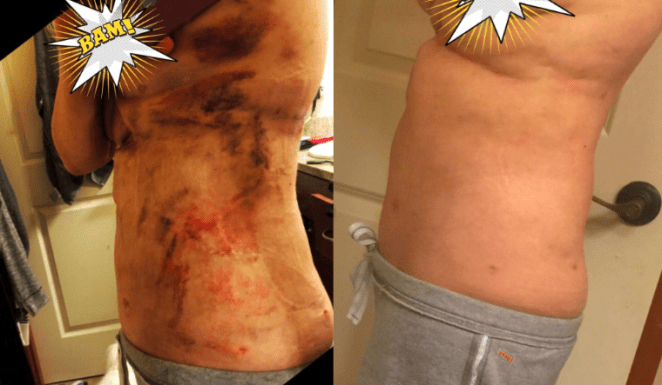 """""""A MUST-buy! I bought three tubes of the Arnica cream as instructed by my surgeon. After surgery I was very bruised, I attached photos (although my abdomen is still swollen). I spread this on twice daily, within a week all my bruising turned yellow, 10 days it's all gone! I bruise easily, and normally bruises take time to heal for me. I wish I had known about this cream before. Will definitely keep this always handy now! A great buy, shipped fast and packaged well."""" —Amazon Customer"""