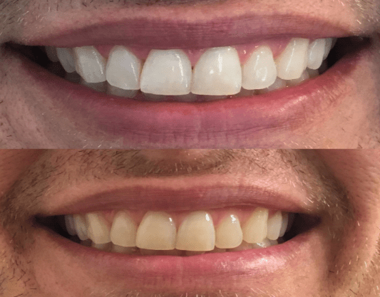 """These are a top pick from Angle News Reviews — read all our picks for best teeth whiteners. Promising review: """"I've used these before and they work great. My teeth stain easily, so they turn noticeably yellow. After using this stuff, my smile was white in pictures, which made me happy. The yellow bothered me enough that I wanted to photoshop my teeth in pictures before! It's hard to tell when you look in the mirror, so take pictures before and after. Those tell the truth!I like that they strips adhere firmly to your teeth. I'm allergic to most adhesives, but I rinsed really well and then brushed my teeth after use, and I didn't have a problem with these. The brief time they are on wasn't enough to bother me much.My teeth are really sensitive, so yeah, it can give you a little nerve pain (just like ice cream), but it was tolerable. It's worth it, as far as I'm concerned."""" —Michelle NGet the strips on Amazon for $43.99."""
