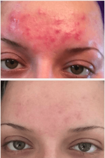 Reviewer's before/after photo showing lots of inflamed acne of forehead. After photo shows significantly less acne and very little redness and scarring.