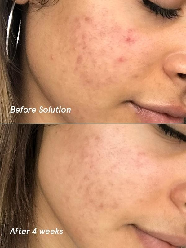 Before/after pic of skin after four weeks of using solution showing clearer skin