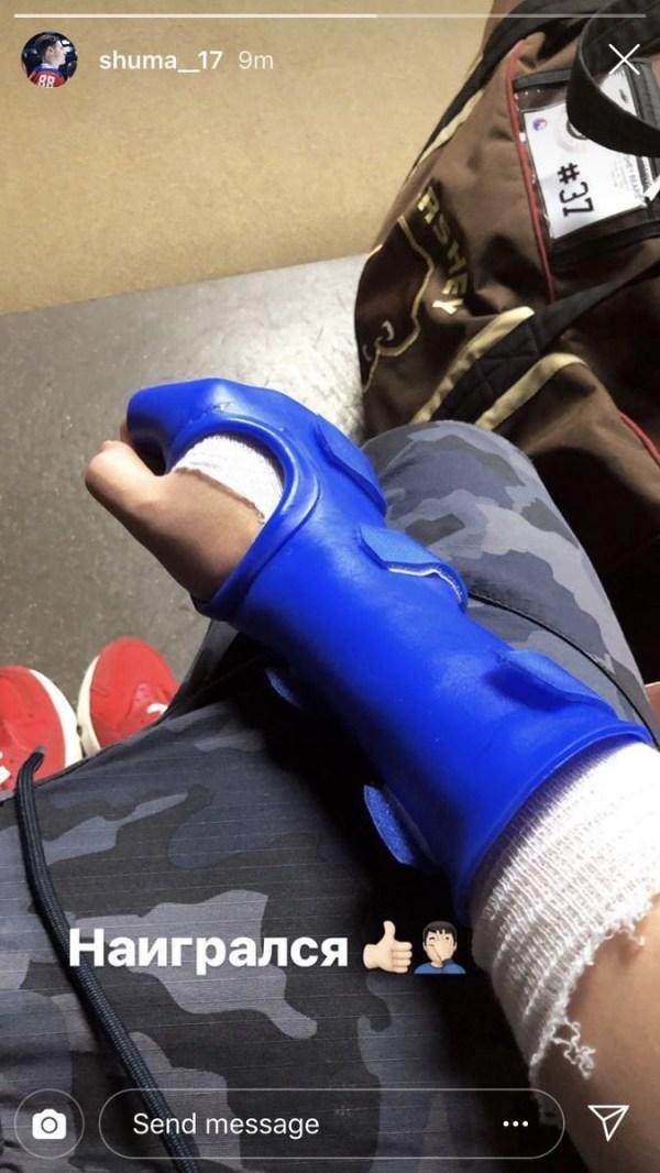 Сергей Шумаков сообщил, что травмировал руку - Чемпионат