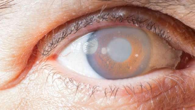 First Artificial Cornea Transplant Restores 78-Year-Old Man's Vision - IFLScience