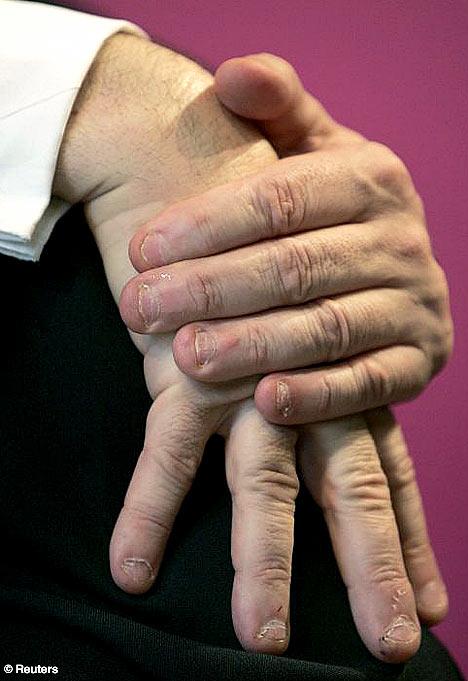 Gordon Brown's gnawed fingernails.
