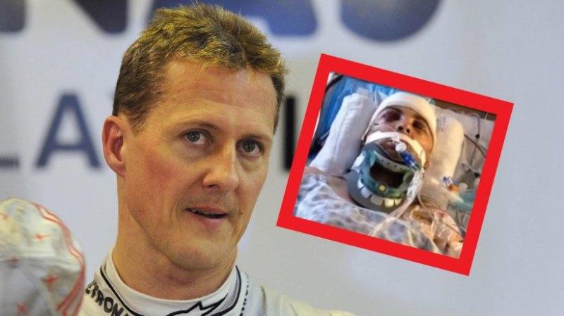 """Michael Schumacher: disturbing clinic pictures! """"Poor ..."""