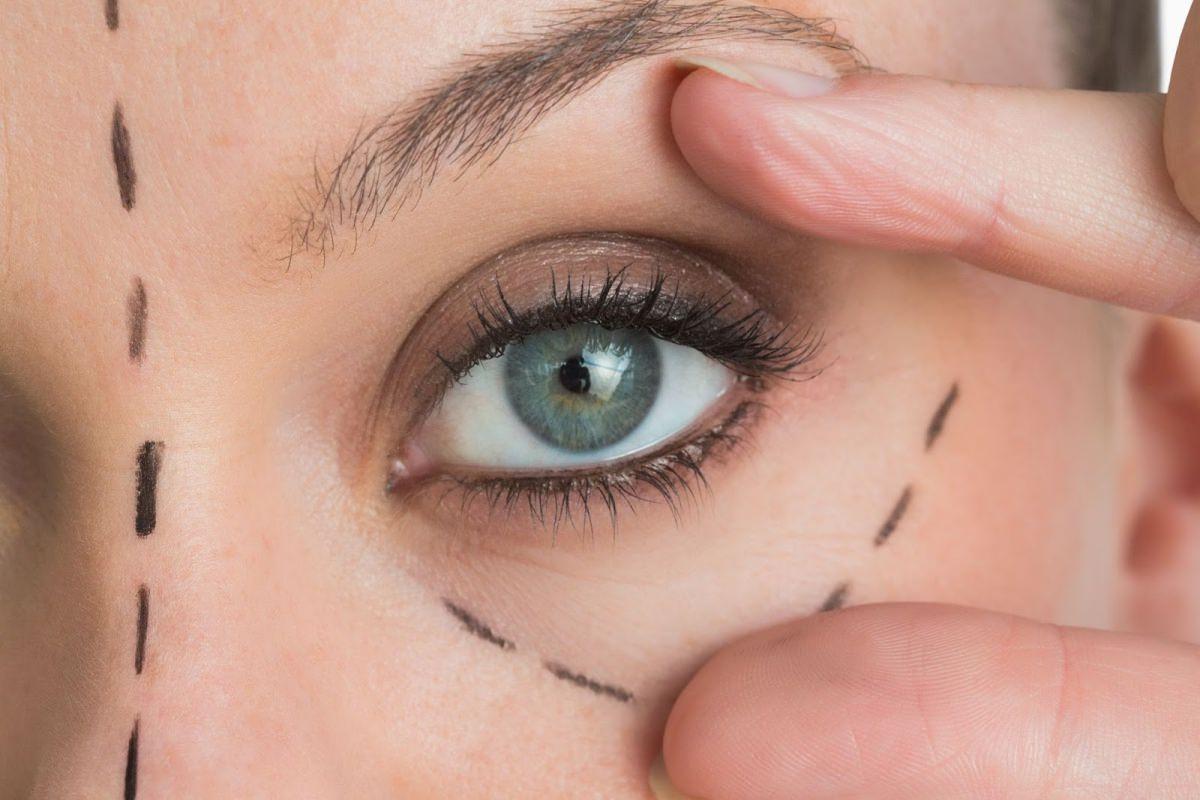 雙眼皮手術常見的七種併發症?