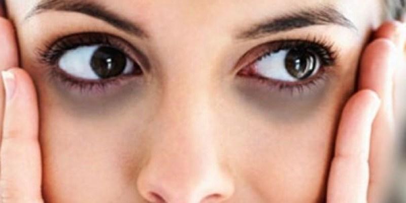 該如何去除黑眼圈,有效方法到底是什麼呢?