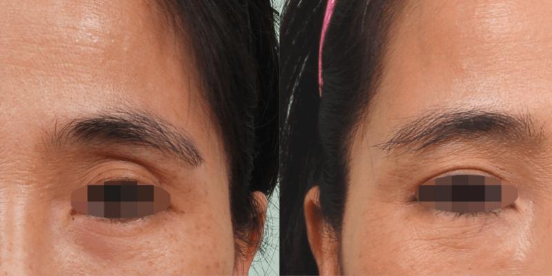 自體脂肪移植補充上眼窩凹陷,明亮雙眸增添迷人感
