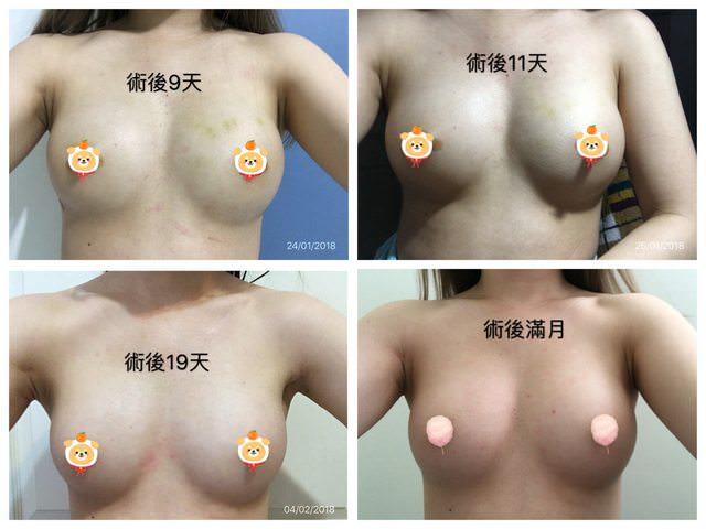 [PTT轉載]水刀大腿環抽自體脂肪隆乳手術全記錄