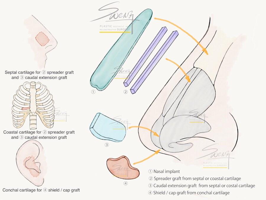 隆鼻的名詞解釋,什麼是全肋,什麼是半肋,什麼又是假體呢?