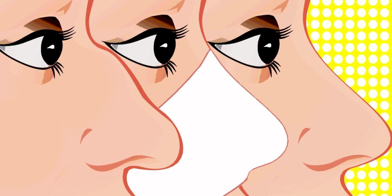 隆鼻不能永久嗎?甚至只能一段時間是嗎?