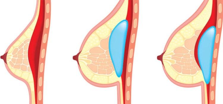 《周杰醫師's》深入剖析自體脂肪隆乳六大妙用