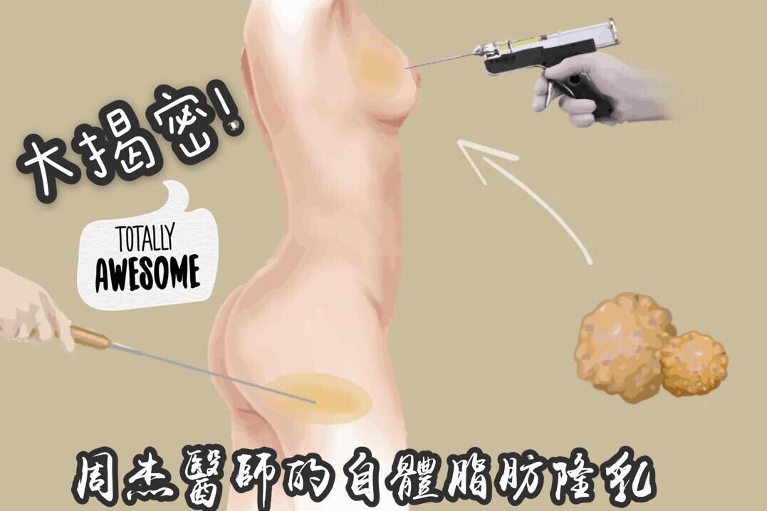 《周杰醫師's》自體脂肪隆乳優點,效果&權衡得失!