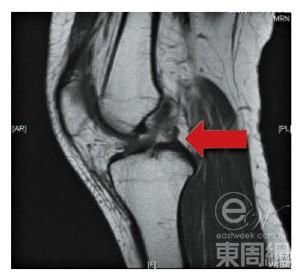 Eastweek.com.hk 東周網【東周刊官方網站】 - 醫療.健康 - 醫療檔案 - 滑水受創 背肌劇痛