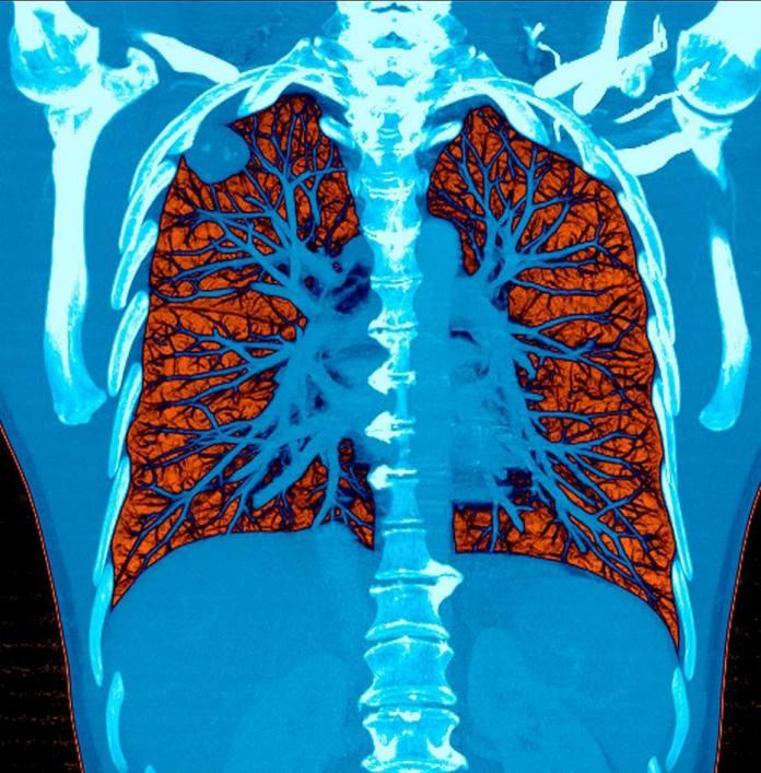 Um sistema de inteligência artificial leu com precisão tomografias computadorizadas dos pulmões em 94% dos casos em um novo estudo.