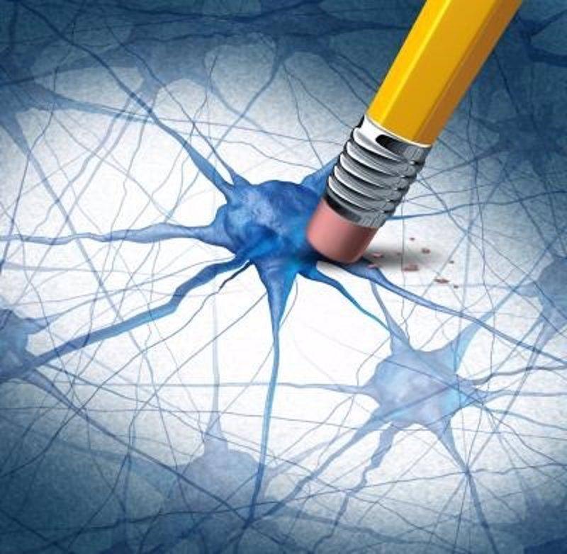 Resultado de imagen para La proteína asesina de las neuronas en el Alzheimer