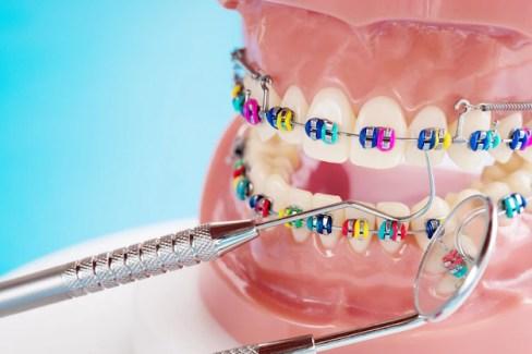 bracket behel di gigi