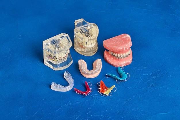 Близкая ортодонтическая модель | Премиум Фото