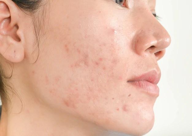 scar acne