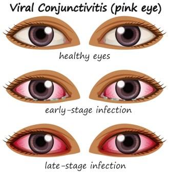 Viral conjuctivitis in human eyes