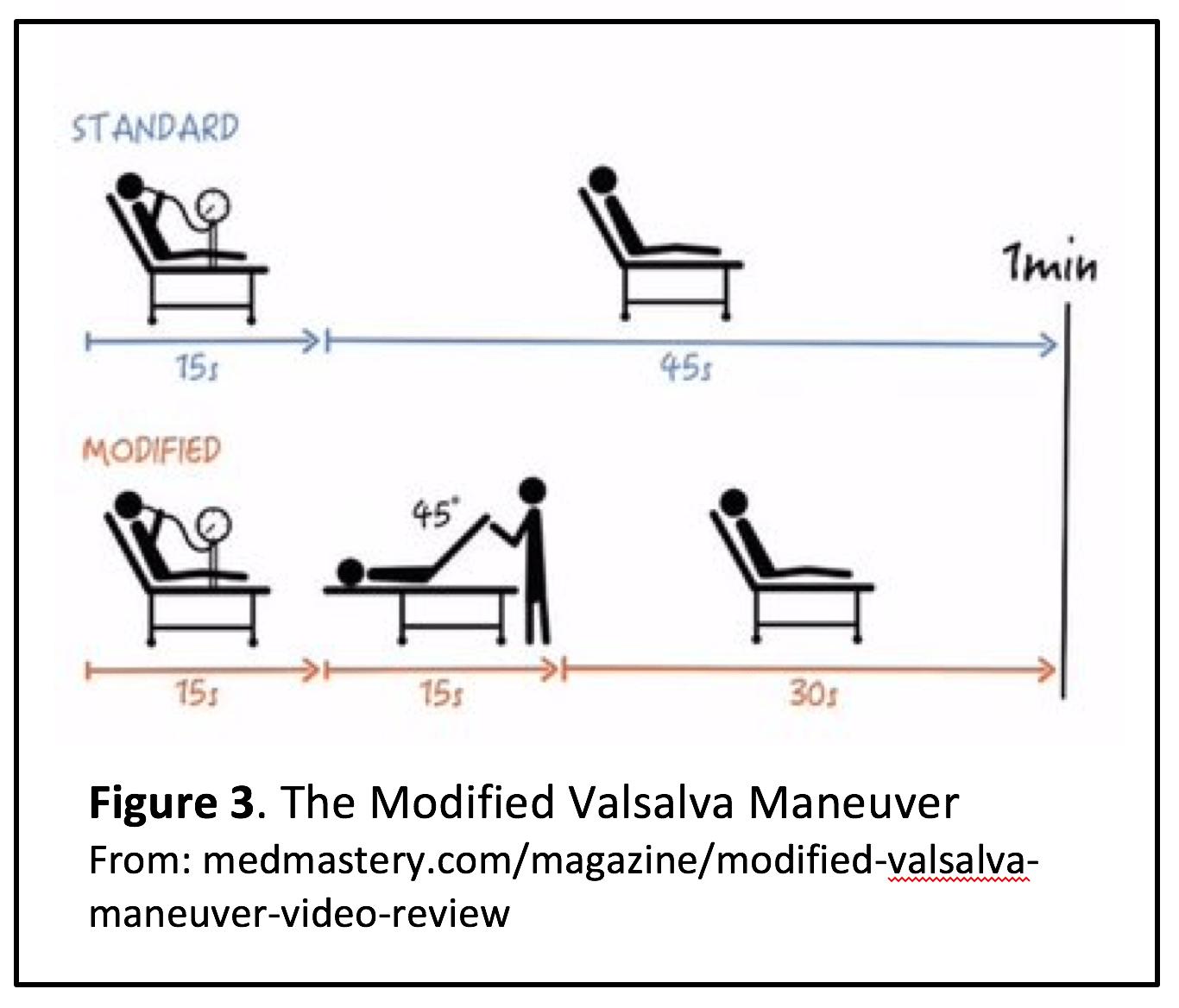 Modified Valsalva Maneuver Insturctions - 43% vs 17% response compared to the standard