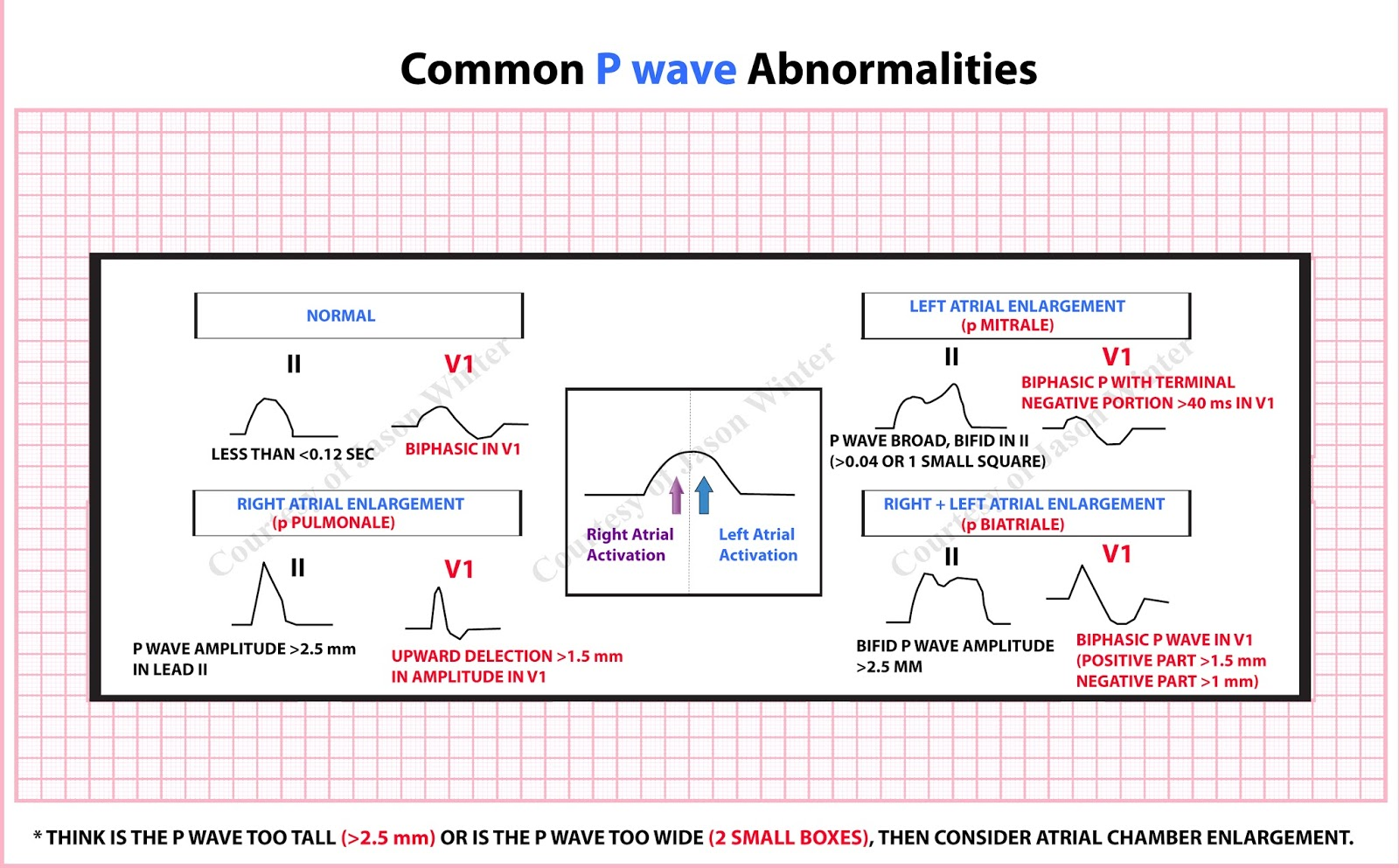 Common P Wave Abnormalities Diagnosis Cardiology