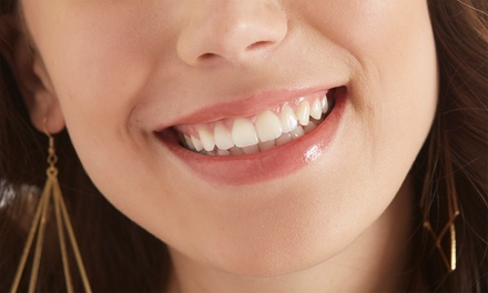 Consultation with Optional Cleaning, Filling, Fluoride Application or Teeth Whitening at Dentamax*