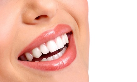 Zoom Teeth Whitening Treatment with Optional Scale, Polish and Zoom Home Teeth Whitening Kits at Pearl Dental Clinic*