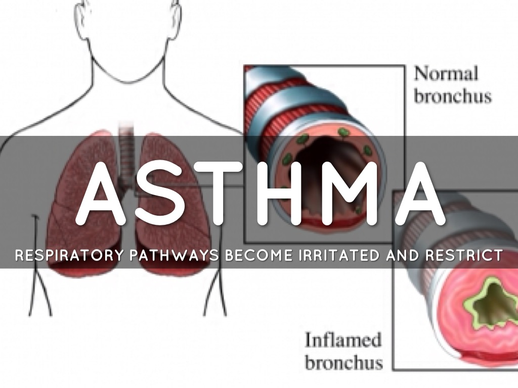 Respiratory System Diseases By Tyler Dillon