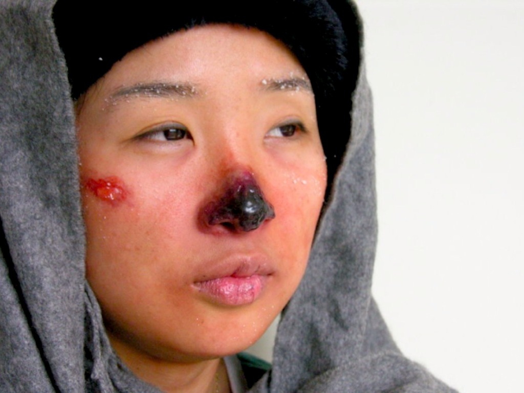 Aid Nose First Treatment Bleed