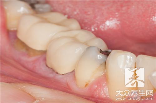 小孩門牙蛀牙怎麼辦?方法其實很簡單 - 康途健康百科
