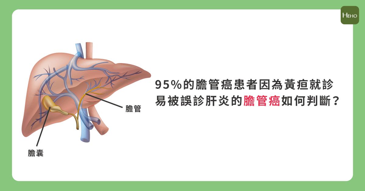 膽管癌-01