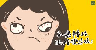精選圖_乳癌