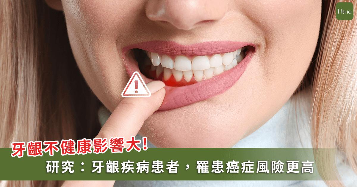 20200729-牙周病