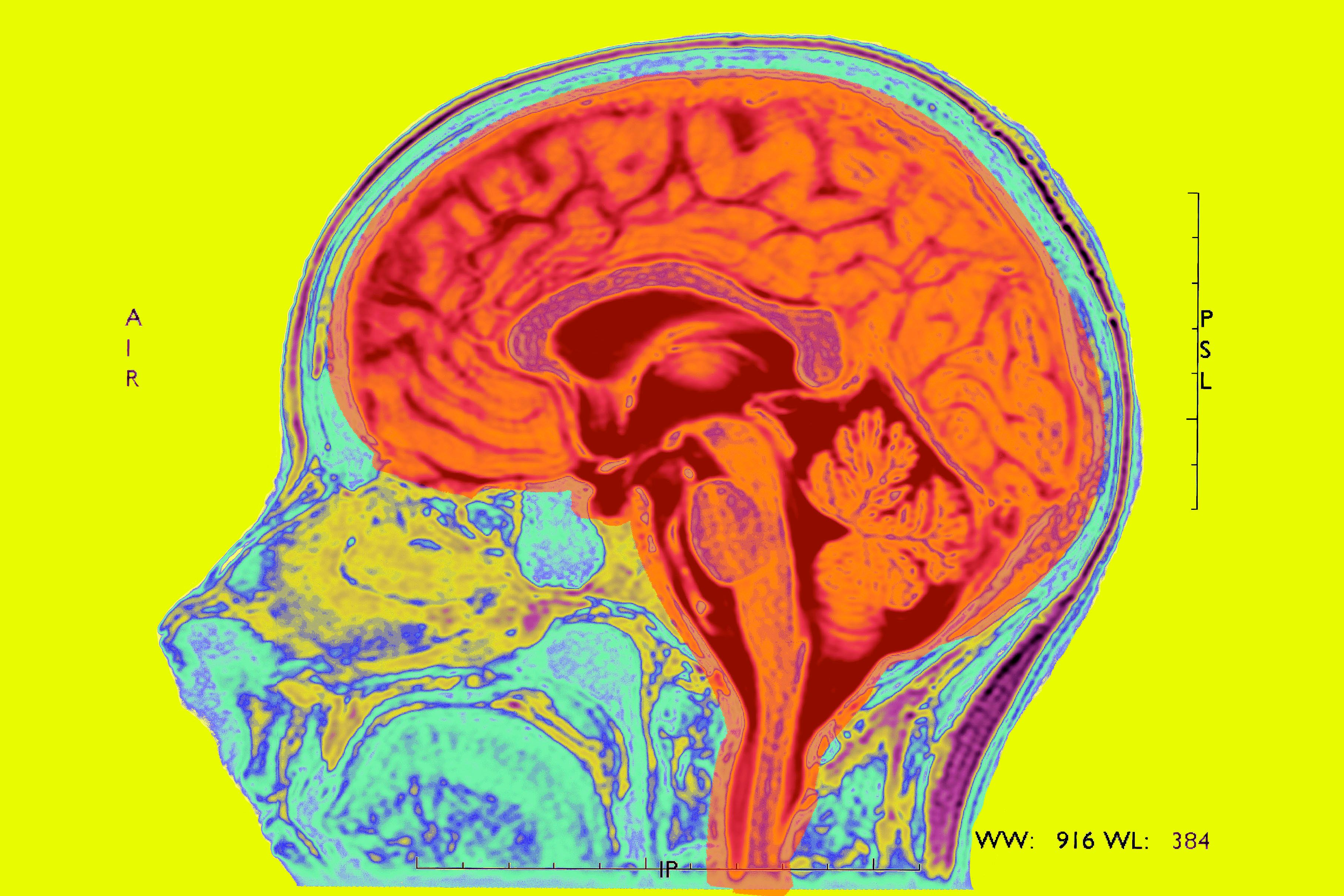 """<span class='image-component__caption' itemprop=""""caption"""">MRI of a normal brain</span>"""