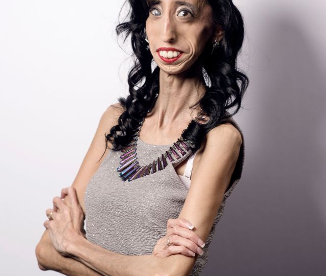How Being Called The Worlds Ugliest Woman Transformed Her Life Huffpost