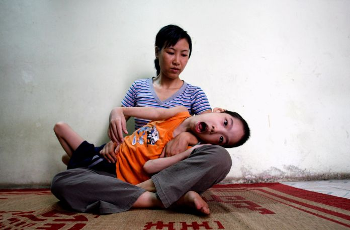 55 Years After Agent Orange Was Used In Vietnam, One Of Its Creators Is Thriving Here 55 Years After Agent Orange Was Used In Vietnam, One Of Its Creators Is Thriving Here 57ab545c1800001701bc9fe9