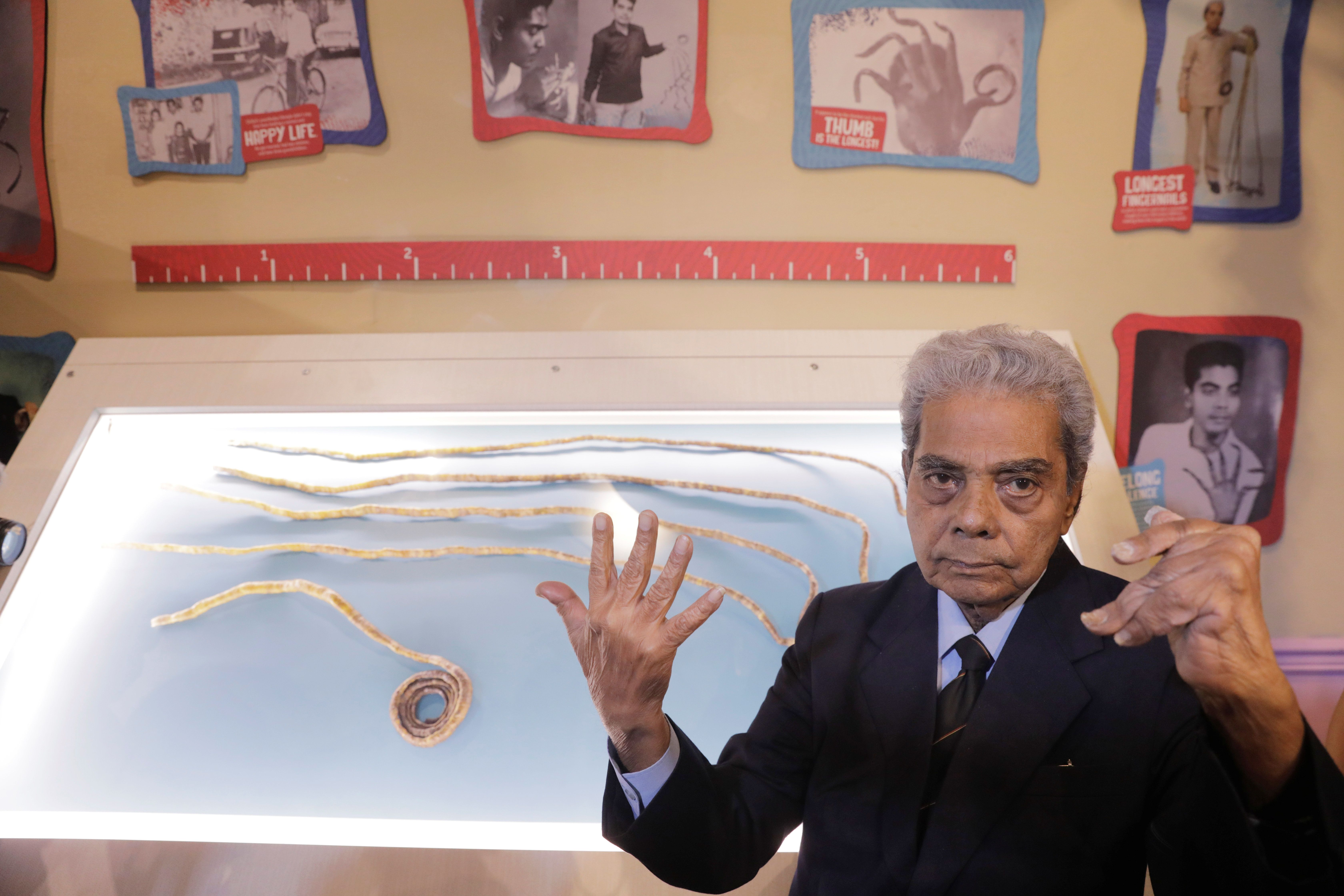Shridhar Chillal of India displays his newly cut fingernails at an announcement that the five fingernails he grew for 66 year