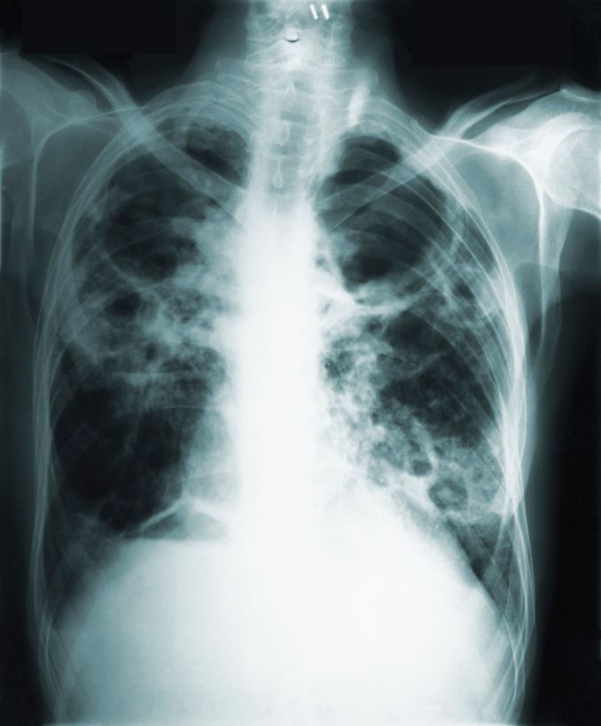 This 1966 image made available by the Centers of Disease Control and Prevention shows a chest x-ray of a tuberculosis patient