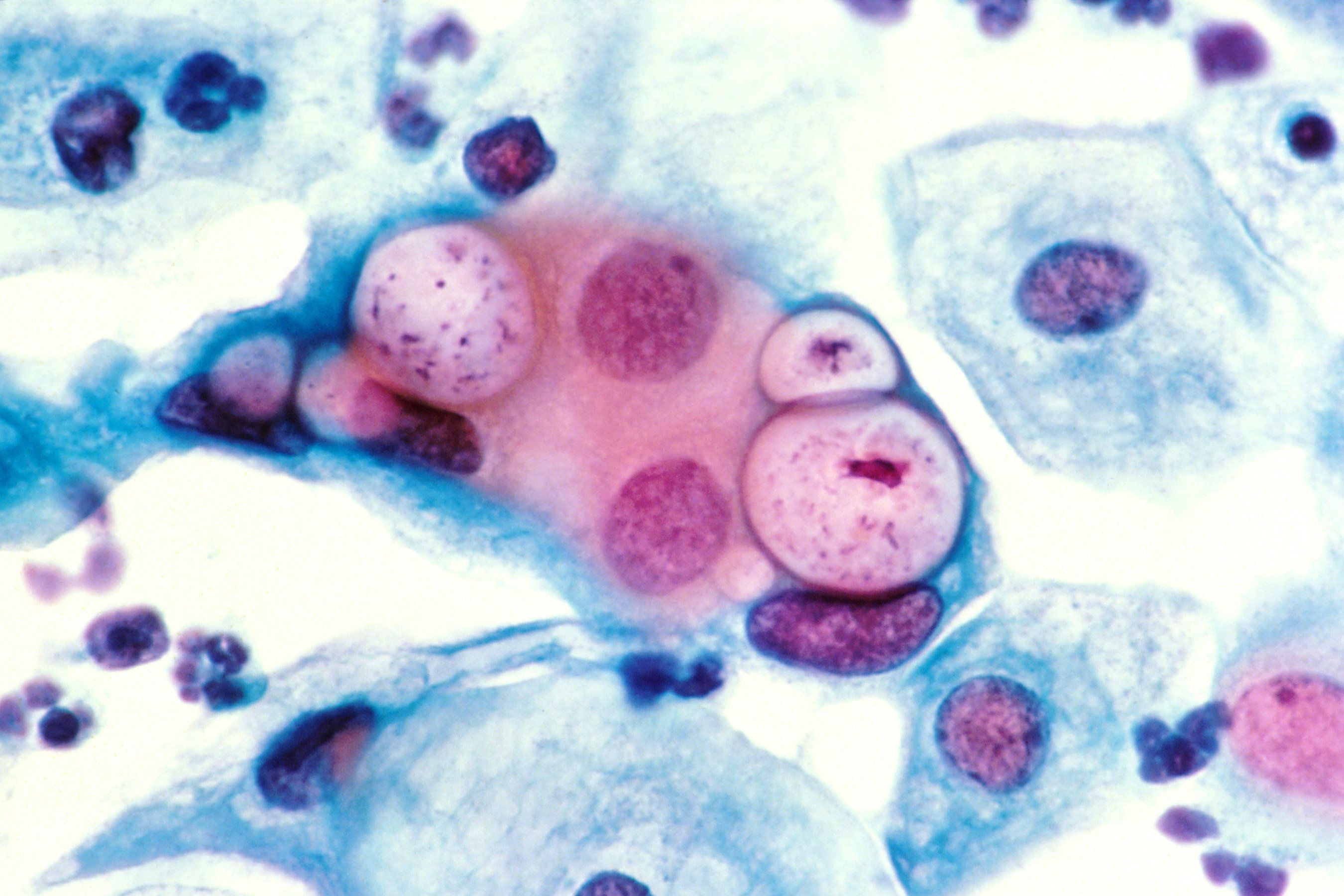 "<span class='image-component__caption' itemprop=""caption"">Human pap smear showing chlamydia in the vacuoles at 500x and stained with H&E.</span>"