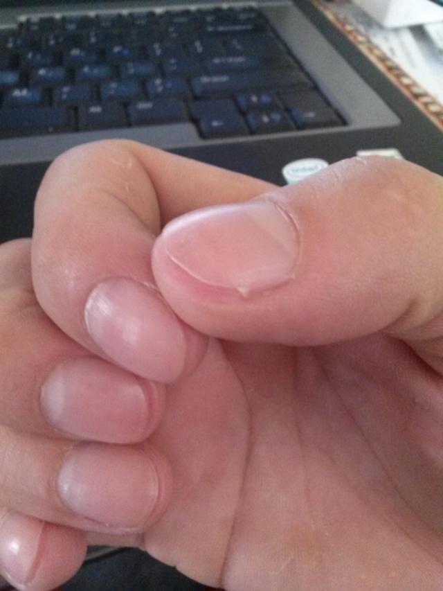 deixado as unhas tão curtas