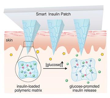 11082040056036 - Adesivo inteligente promete controlar os níveis de insulina