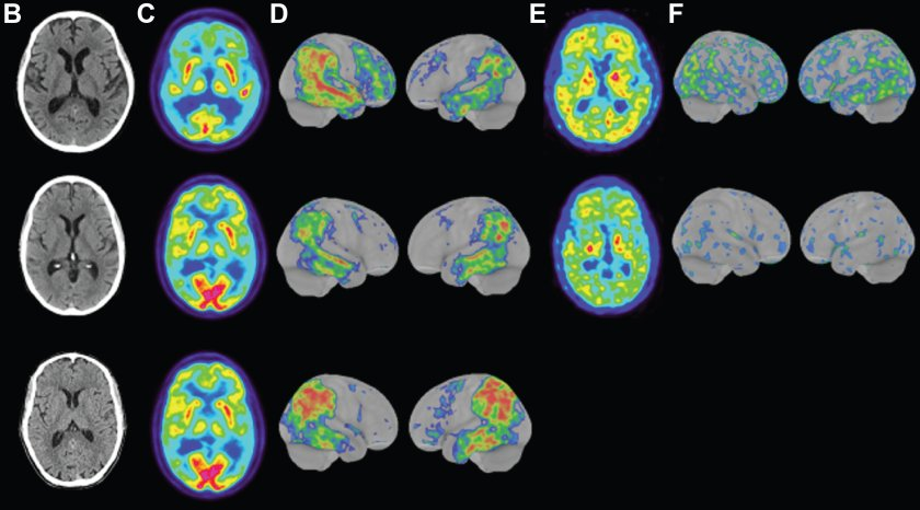Images of the brains of the three people with the form of early Alzheimer's